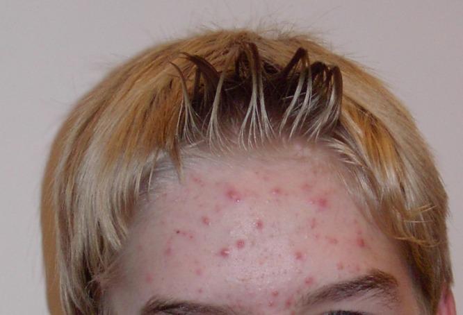 choroby skóry
